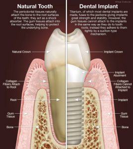 dental-implant-vs-natural-tooth
